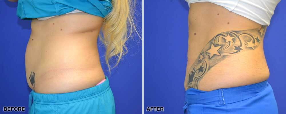 CoolSculpting: Benefits